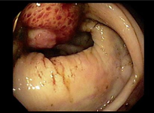 Colonoscopy showing an ulcerating mass at the ileocecal valve.