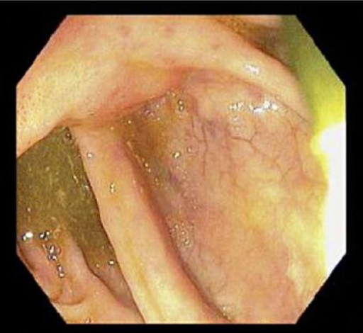 Fig. 5. Follow-up colonoscopy. Note the complete resolution of the mass at the ileocecal junction.