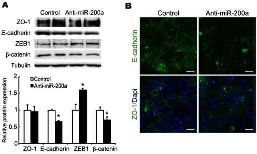 Effect of miR-200a knockdown on E-cadherin protein expression.(A) E-cadherin, ZO-1, ß-catenin and ZEB1 protein levels were determined by western blot analysis. (B) Confluent EpH4 cells transfected with control or anti-miR-200a antisense under DIP treatment were immunostained for E-cadherin and ZO-1. Scale bar  = 10 μm. All experiments were repeated three times.