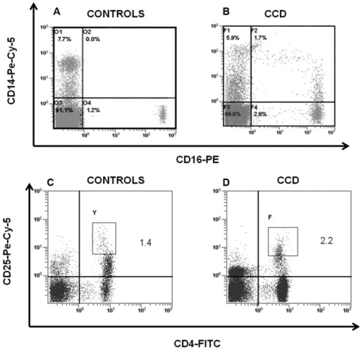 CD14+/CD16+ and CD4+/CD25high cells in CCD patient. Flow cytometry analysis of CD14+/CD16+ and CD4+/CD25high cells in peripheral blood cells revealed that CD14+/CD16+ was significantly higher in patient (B) compared with the age-matched normal controls (A), whereas no significant differences were detected in CD4+/CD25high cells among patient (D) and controls (C).