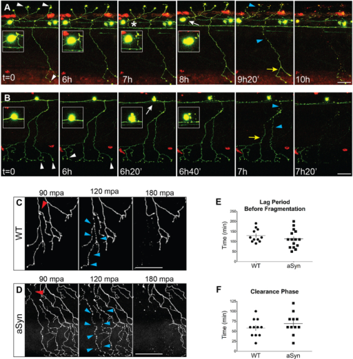 Axonopathy is not followed by 'dying back' or Wallerian-like degeneration in aSyn-expressing neurons. (A,B) Time-lapse imaging of neurodegeneration. Cells were imaged every 20 minutes beginning 54 hours post-fertilization (hpf). Axons from at least 11 embryos from each group were transected; representative images from aSyn-expressing animals are shown. Time stamps in images are relative to the start of the imaging period. Axonal varicosities were observed (white arrowheads) several hours before cell death. White arrows point to morphological changes indicative of cell death. Inset represents cell body magnified 2×. Asterisk in A indicates separation of the axon from the cell body. Axonal fragmentation (blue arrowheads) usually did not occur before cell death, and was not stereotyped: it did not occur synchronously along the length of the axon, nor in a retrograde direction (yellow arrows point to distal portions of the axon that are still intact). (C,D) Representative images of wild-type (C) and aSyn-expressing (D) axons undergoing WD after transection with a two-photon laser. Axons were transected with a two-photon laser at 2 dpf, and embryos were imaged every 30 minutes for up to 12 hours. Red arrowhead points to site of transection. After injury, in both wild-type and aSyn-expressing axons, fragmentation was synchronous along the length of the transected axon (blue arrowheads). mpa, minutes post-axotomy. (E) There was no difference in the duration of the lag period between transection and fragmentation (WT: 129.1±10.0 minutes, n=11 axons from 11 animals; aSyn: 112.7±11.7 minutes; n=15 axons from 15 animals, P=0.3173). (F) The time between fragmentation and clearance of all axonal debris was not significantly different between the two groups (WT: 58.2±6.9 minutes; aSyn: 69.1±8.3 minutes; P=0.3213). Scale bars: 50 μm.