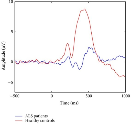 Average of target epochs collected from Pz during all testing days for ALS patients (red curve) and healthy controls (blue curve).