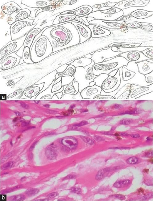 (a) Photomicrograph shows tumor cells with ill-defined cell borders, abundant cytoplasm and open phase nucleus with prominent eosinophilic nucleoli (H&E stain, ×400). (b) Hand-drawn illustration of the same