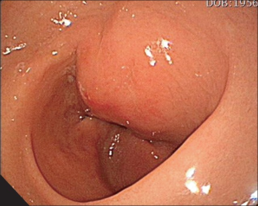 Gastroscopic examination reveals a bulging mucosa on the posterior wall of the gastric antrum.