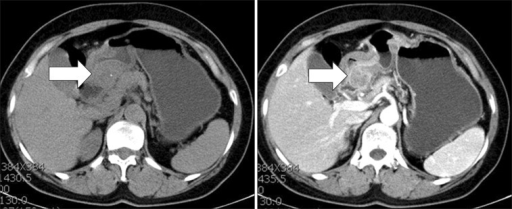 Computed tomography reveals a well-defined heterogeneous enhancing mass, approximately 3 cm in size, on the posterior wall of the gastric antrum (arrows).