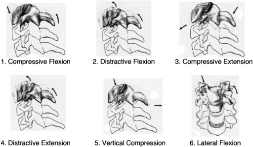 Allen et al. divide cervical spine injuries into the following 6types based on the direction of external force at the time of injury: 1. CompressiveFlexion, 2. Distractive Flexion, 3. Compressive Extension, 4. Distractive Extension,5. Vertical Compression, and 6. Lateral Flexion.