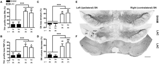 Significant degeneration of the nigrostriatal DA-ergic pathway in mice receiving 3 μg LAC. TH immunohistochemistry revealed a significant loss of TH+ profiles in the SNc (A,E), as well as in the PBP located at the injection site (B,E), following LAC administration. Loss of nigral TH+ profiles translated to reduced striatal DA content (C). LAC lesion also caused a slight atrophy (D) and deafferentation of the ipsilateral SN (asterisk in E), but did not damage GABA-ergic neurons in the SNr at the injection site (as evaluated using PV immunohistochemistry, F). Data are presented as percentage decrease in TH+ profiles (A,B), DA content (C), or TH+ SN volume (D) compared to the intact side (mean ± s.e.m.). ***p < 0.001 (Two-Way ANOVA), ###p < 0.001, ##p < 0.01, #p < 0.05 (Bonferroni post-hoc vs. sham). Sample size indicated in the figure. DA dopamine, LAC lactacystin, PBP parabrachial pigmented nucleus, SN substantia nigra, SNc substantia nigra pars compacta, TH tyrosine hydroxylase. Scale bar 400 μm (E,F).