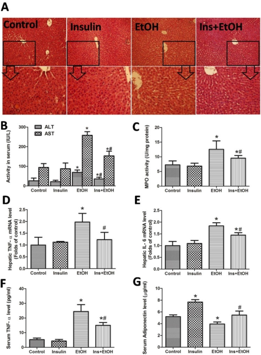Insulin pre-administration alleviated acute ethanol exposure-induced liver injury and inflammation in mice. (A) H&E staining of liver; (B) ALT and AST level in serum; (C) Hepatic MPO activity; (D) Hepatic TNF-α mRNA level determinate by RT-PCR; (E) Hepatic IL-6 mRNA level determinate by RT-PCR; (F) Serum TNF-α level determinate by ELISA assay; (G) Serum Adiponectin level determinate by ELISA assay. Data of B-C and F-G were expressed as mean ± SD of eight mice per group (n = 8). Data of D and E were expressed as the mean ± SD of three independent experiments (n = 3). *P< 0.05, compared to control group; #P < 0.05, compared to EtOH group.