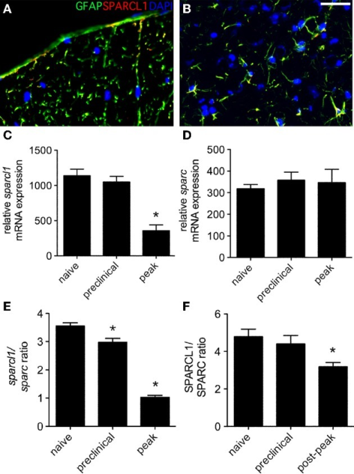 Expression of sparcl1 and sparc transcripts and SPARCL1 and SPARC proteins changes in lumbar spinal cord tissue over the course of non-relapsing EAE in C57BL/6 mice. (A,B) Representative immunofluorescence shows SPARCL1 expression co-localizes with GFAP staining in both white and gray matter of the spinal cord, Bar = 40 μm. (C) Relative sparcl1 mRNA expression fluxes over the course of non-relapsing EAE (n = 5 mice per disease stage). (D) Relative sparc mRNA expression does not change over the course of non-relapsing EAE (n = 5 mice per disease stage). (E) The calculated sparcl1 to sparc mRNA expression ratio shifts in favor of synapse inhibition at peak disease. (F) A similar change in the SPARCL1 to SPARC protein concentration ratios is seen over the course of non-relapsing EAE (n = 5 mice per disease stage). *p < 0.05 compared to levels found in naïve spinal cord.