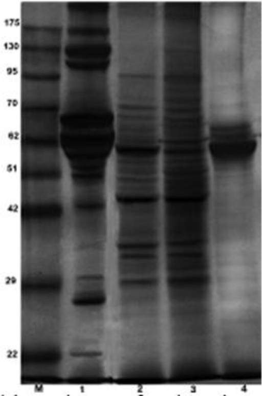 SDS-PAGE analysis of soluble antigens of tachyzoites and bradyzoites of T. gondii, RH strain (cyst like structures) and bradyzoites of avirulent Tehran strain.