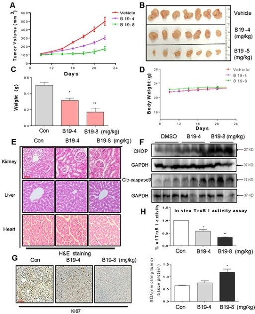 VEGF-C induced by TGF- β1 signaling in gastric cancer