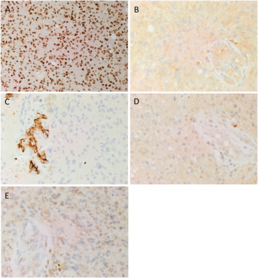 Representative 3,3-diaminobenzidine immunohistochemical stained images demonstrating cytoplasmic expression of SOX2 [(A), brown], PRR [(B), brown] by cells within GBM, and the endothelium of the microvessels. ACE [(C), brown] was present only in the endothelium of the microvessels with no staining of the cells within the tumor. Cytoplasmic and nuclear staining of ATIIR1 [(D), brown] and ATIIR2 [(E), brown] was observed on the cells within the tumor and the endothelium of the microvessels. Cell nuclei were counterstained with hematoxylin [(A–E), blue]. Original magnification: 400×.
