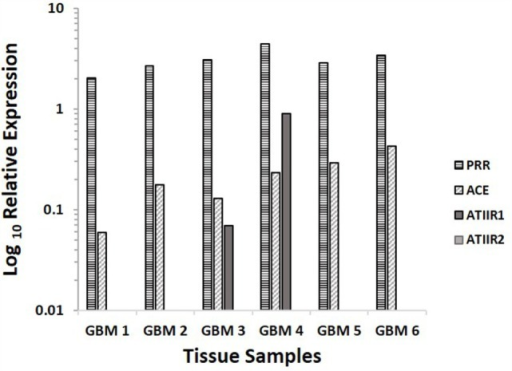 Relative expression of mRNA transcripts of the components of the RAS in six GBM samples, depicted as a ratio over the GUSB housekeeper. PRR and ACE were expressed in all six samples. ATIIR1 was present in two and ATIIR2 was below detectable levels out of the six GBM samples examined.