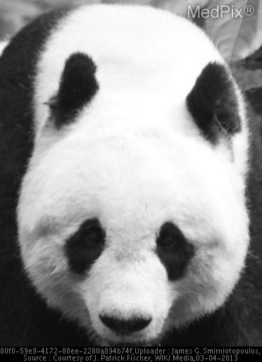 Here is a picture of a Giant Panda (courtesy of J. Patrick Fischer, WIKI Media) .  The midbrain in patients with Wilson's disease has been likened to this image - with the red nuclei dark and the cerebral peduncles also dark on the T2W MRI.