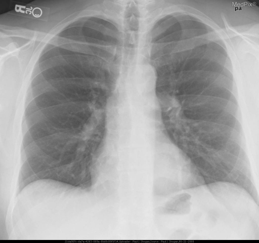 Normal PA chest radiograph.  There is no subdiaphragmatic free air.