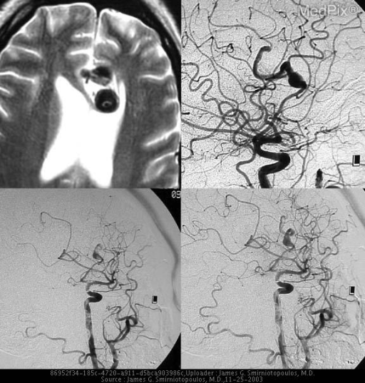 There is a fusiform aneurysm of the anterior cerebral artery.