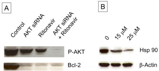 Wester blot analysis of AKT siRNA treated MDAH-2774 cells. A. Approximately 10 μg of protein extracts of control and treated samples of MDAH-2774 cells as indicated were resolved by SDS-PAGE, transferred to nitrocellulose membrane; and probed with Bcl-2. β actin was used as a loading control. B. SDS-PAGE analysis of ritonavir treated samples of MDAH-2774 cells.
