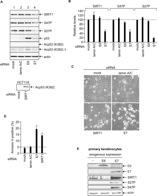 HPV E7 enables SiHa cervical cancer cell survival via up-regulation of SIRT1 protein levels. (A)                                            Equal amounts of protein analysed by immunoblotting as indicated, upper                                            panels SiHa cells (50 μg protein). Bottom panel HCT116 cell positive control for p53 K382Ac                                            detection (40 μg protein, 2 minute exposure). Note that p53 K382Ac is undetectable                                            in SiHa cells (5 min exposure) and requires 2 h exposure for detection (†).                                            (B) Relative levels of SIRT1, SIRT1 S47P and SIRT1 S27P 48h                                            post-transfection with indicated siRNAs, mean of two experiments. (C)                                            Phase contrast images of SiHa cells post-transfection with the indicated                                            siRNAs. (D) Apoptotic SiHa cells 48h post-transfection with the                                            indicated siRNAs. (E) Primary human keratinocytes 48h                                            post-transfection with expression vectors for HPV E6 and HPV16 E7 and                                            equivalent samples immunoblotted for HPV E6, HPV E7, SIRT1, SIRT1 S27P and                                            SIRT1 S47P.