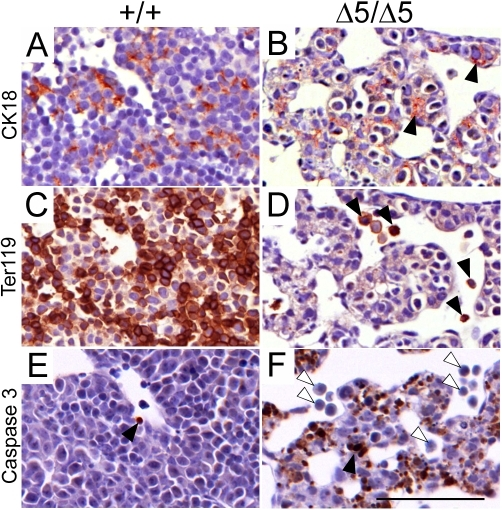 Apoptotic defects in PiT1 mutant fetal liver cells.(A–B) Cytokeratin 18 (CK18) staining (brown) reveals the presence of hepatoblasts in E12.5 mutant sections (black arrows). (C–D) Staining of Ter119 (brown) reveals great loss of erythroid cells in E12.5 mutant liver sections (black arrows). (E–F) Activated caspase 3 staining of E12.5 liver sections reveals excessive apoptotic activity in mutant liver sections (black arrow) that was not present in Ter119 positive cells (white arrows). Bar, 100 µm.
