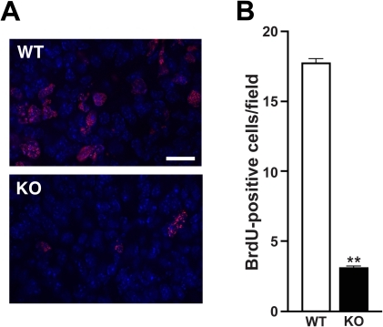 Reduced cell proliferation in postnatal Cby−/− lungs.(A) Representative immunofluorescent images of BrdU incorporation in P11 lungs are shown. Nuclei were visualized with DAPI. Scale bar, 2 µm. (B) Quantification of BrdU-positive cells shows a dramatic reduction in cell proliferation in Cby−/− lungs at P11 (n = 3 per genotype). Values are means ± SE. Student's t-test; **P<0.001.