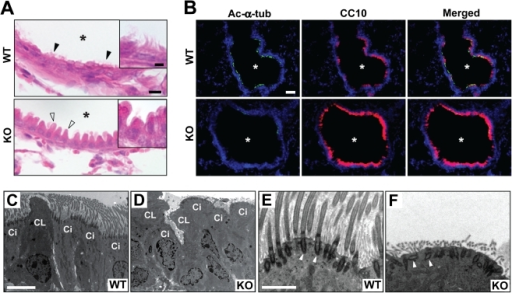 Proximal airway phenotypes of Cby−/− mice.(A) Lung airway sections from adult Cby+/+ and Cby−/− mice were stained with H&E. Motile cilia were noticeable in the airway epithelium of Cby+/+ mice (black arrowheads and inset) but not in that of Cby−/− mice. Atypical morphology of non-ciliated Clara cells was also observed in Cby−/− mice (white arrowheads and inset). Asterisks indicate the airway lumen. (B) Airway sections from adult Cby+/+ and Cby−/− mice were double-labeled with antibodies against the ciliated cell marker acetylated α-tubulin (green) and Clara cell marker CC10 (red), and merged images are shown. Nuclei were stained with DAPI. (C–F) TEM was performed on adult proximal lungs from Cby+/+ (C, E) and Cby−/− (D, F) mice. The airway epithelium of Cby+/+ mice was lined with typical columnar ciliated and non-ciliated Clara cells. Strikingly abnormal morphology and disorganization of these cell types were seen in Cby−/− mice. In addition, ciliated cells had a marked paucity of motile cilia. High-magnification images of ciliated cells revealed that basal bodies (white arrowheads) were polarized perpendicular to the apical cell surface in Cby+/+ mice (E), but frequently misoriented in Cby−/− mice (F). Ci, ciliated cells; CL, Clara cells. Scale bars: (A) 10 µm; (inset) 5 µm; (B) 50 µm; (C, D) 5 µm; (E, F) 500 nm.