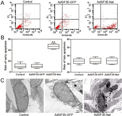 Net induces the apoptosis in pancreatic ductal carcinoma cell PL45.(A) Cell apoptosis was examined in PL45 cells after 48 hours of Ad5/F35-Net transfection using AnnexinV/PI method. (B) The rates of early and late apoptosis were evaluated after 48 hours of Ad5/F35-Net transfection. (C) Ultrastructures of cells were observed by transmission electron microscope. Concentrated phenomena of cytoplasm, karyopyknosis, karyorrhexis and apoptotic body formation were detected in PL45 cell transfected with Ad5/F35-Net, no obvious changes was observed in control group and Ad5/F35-GFP group. Black arrow indicated karyopyknosis andkaryorrhexis. *p<0.05, **p<0.01.