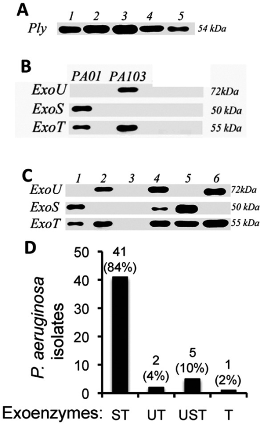 Protein expression of S. pneumoniae pneumolysin and P. aeruginosa exotoxins.A. Western blot of pneumolysin in the ATCC reference strain (Lane 1), and four representative clinical isolates (lanes 2–5). B. Western blot of culture supernatants from Pseudomonas aerugenosa reference strains PAO1, which expresses ExoS and ExoT, and PA103, which expresses ExoU and ExoT. C. ExoS, ExoT and ExoU expression in representative Pseudomonas clinical isolates. Lane 1 is similar to PAO1 in expressing ExoS and ExoT; Lane 2 is similar to PA103 in expressing ExoU and ExoT; Lane 3 is P. otitidis, which does not express Type III exotoxins; Lane-4 Clinical isolate express all three effector molecules; Lane-5 Exo U and Exo T expressing clinical isolate similar to PA103. D. percent and total exotoxin production by 49 clinical isolates.