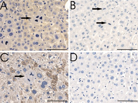 Mitotic figures inmouse liver sections after partial hepatectomy. (A) Sections of mouse livers of induced ptetp16INK4aTALAP-2 mice (A, C) and control mice (B, D) were stained with the anti-p16INK4a antibody (C-20, yellowish-brown colour) 72 hrs (A, B) and 14 days (C, D) after PH. Mitotic figures were identified by chromosomes visible as tangled, dark-staining threads (arrows).Number of mitotic figures in p16INK4a expressing and non-expressing livers was similar 72 hrs after PH, but differed significantly 14 days after PH (with control mice having no but p16INK4a expressing mice displaying some mitotic figures 14 days after PH (C)). Only in p16INK4a expressing mice abnormal mitotic figures like triphasic spindles were observed. Bar represents 50 μm.