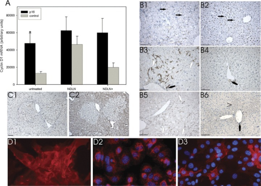 Liver-specific stimulation of proliferation by nodularin.Mice were treated with nodularin thrice weekly and killed next day after the last injection (NDLN) or 4 weeks after the last injection (NDLN+). (A) Cyclin D1 mRNA levels were determined by real time RT-PCR. Differences between untreated p16INK4a expressing and control mice, between controls and NDLN-treated controls (NDLN), and between nodularin treated controls that were killed 4 weeks after NDLN treatment were statistically significant (P < 0.05, Student's t-test). The number of different animals tested was: p16(untreated) = 7, control(untreated) = 5, p16(NDLN) = 8, control(NDLN) = 12, p16(NDLN+) = 21, control (NDLN+) = 12.(B) in situ immunodetection of PCNA (B1, B2), A6 antigen (B3, B4) and E-Cadherin (B5, B6) in nodularin treated mice.80-90% of hepatocytes nuclei of control mice were immunostained with the PCNA antibody (brown colour, B2). In p16INK4a expressing mice predominantly small cells with oval nuclei were positively stained with the PCNA antibody (white arrow) and some of the hypertrophic hepatocytes (B1, black arrows), but less intensive than hepatocytes in control mice (B2, black arrows). The anti-A6 antibody identifies these cells as facultative liver stem cells, oval cells, forming ductular structures (B3, white polygon). These bipotent facultative stem cells of liver express the A6 antigen like cells of the biliary system (cholangiocytes, B3, B4, black polygon). A common feature of epithelial cells, hepatocytes, cholangiocytes and oval cells, in liver is the expression of E-cadherin.On the histological level E-cadherin is detected in periportal hepatocytes (B6, black arrowhead) biliary ductuli (B5, B6, black polygon) and oval cells (B5, white polygons), whereas the latter form the same ductular structures detected with the A6 antibody (B3).(C) Nodularin treated p16INK4a expressing mice (C1, C2) develop p16INK4a negative loci (C2) consisting of accumulating hypertrophic hepa-tocytes. Some of the hypertrophic hepatocytes were PCNA positive (C1, brown). The black lines mark the two foci in the PCNA stained liver slide (C1). (D) Oval cells were isolated from nodularin treated p16INK4a expressing mice by two-step collagenase perfusion and subsequently density gradient centrifugation. A6-positive cells (red colour) of passage 0 (D1) growing clonally were trypsinated and cultured to passage 10 (D2) without loss of A6 antigen. In higher passages (D3, passage 16) a loss or down-regulation of A6 expression was observed.Representative photomicrographs of OVUE265 are displayed. Bar represents 50 μm.