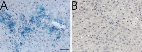 Enzyme histochemical detection of senescence-associated β-galactosidase. Eight weeks old p16INK4a expressing mice (A) and control mice (B) were treated with nodularin for a period of 12 weeks and killed 5 days after treatment. SA-β-Gal (light blue colour) was expressed mainly in hepatocytes. Bar represents 50μm.