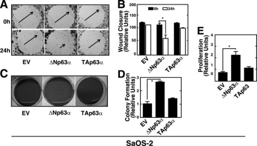 Overexpression of ΔNp63α enhanced the malignant phenotype of SaOS-2 cells. A. Analysis of the motilities of SaOS-2- ΔNp63α, SaOS-2-EV and SaOS-2-TAp63α cells in a wound healing assay. Representative photomicrographs of scratch-wounds at the indicated time points after wounding. Arrows indicate the wound width. B. Quantitative analysis of wound closure in cultures of SaOS-2-EV, SaOS-2-ΔNp63α and SaOS-2-TAp63α cells. C. Analysis of anchorage-independent growth in soft agar of SaOS-2-ΔNp63α, SaOS-2-TAp63α and SaOS-2-EV cells. Representative images of colonies stained with 0.005% crystal violet. D. Quantitative analysis of colony formation in soft agar. The numbers of colonies formed by SaOS-2-EV cells were defined as 1. E. Analysis of proliferation of SaOS-2-ΔNp63α cells, SaOS-2-EV and SaOS-2-TAp63α cells using a WST assay. Data shown in 2 B, 2 D and 2E represent the mean ± SEM of three independent experiments ( *P < 0.05).
