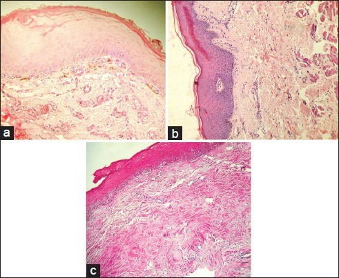 Photomicrographs of histological sections of (a) Early OSMF, (b) Moderately advanced OSMF (c) Advanced OSMF (H&E stain, ×100)