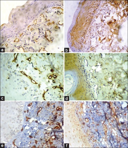Immunohistochemical staining for CD34 and bFGF. (a) and (b) Early OSMF demonstrating CD34 and bFGF expression, respectively. (c) and (d) Moderately advanced OSMF demonstrating CD34 and bFGF expression, respectively. (e) and (f) Advanced OSMF demonstrating CD34 and bFGF expression, respectively (IHC stain, ×100)