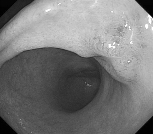 Gastrofibroscopy showed a type 0-IIa+IIc lesion with a maximum size of 20 mm in the posterior side of the lower third of the stomach.