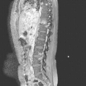 Day 90. MRI showed vertebral infection at Th11–12 and L3–4 with no involvement of the discs or spinal cavity.