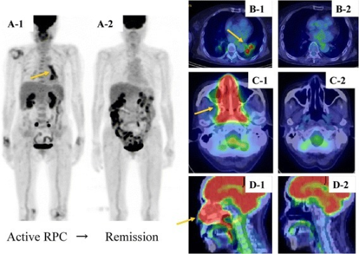 Comparison of pre- and post-treatment18 F-fluorodeoxyglucose-positron emission tomography/computed tomography (FDG-PET/CT) images in a patient with relapsing polychondritis (RPC). (A) Maximum intensity projection and (B-D) axial FDG-PET/CT findings of RPC in a 74-year-old female patient presenting with nasal symptoms. The patient was positive for type II anti-collagen antibody, and nasal cartilage biopsy was consistent with RPC. FDG accumulation (SUVmax = 13.03) is well defined from the infrahilar region of the left inferior lobe to the pulmonary hilus (A1 and B1, arrow) and conspicuous in the nasal cavity (SUVmax = 9.50) (C1 and D1, arrow). Neither bronchial wall thickening nor bronchial stricture is apparent. Post-treatment images show a complete lack of accumulation (A2-D2). SUV, standardized uptake value.