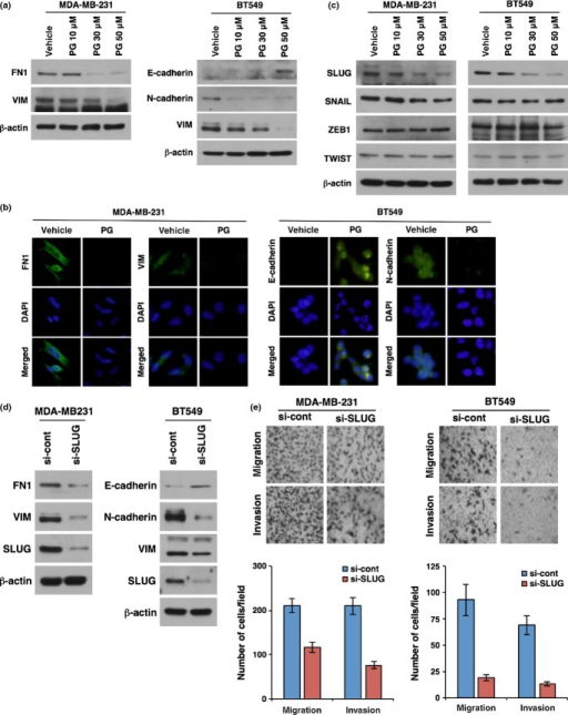 Phloroglucinol suppresses mesenchymal traits of basal type breast cancer cells. (a, b) Western blot (a) and immunocytochemical analysis (b) for EMT markers in basal type breast cancer cells after treatment with vehicle or phloroglucinol (10, 30 or 50 μM). (c) Western blot analysis for EMT master regulators after treatment with vehicle or phloroglucinol (10, 30 or 50 μM). (d) Western blot analysis for EMT markers in basal type breast cancer cells after treatment with siRNA targeting SLUG. (e) Migration and invasion assay after treatment with siRNA targeting SLUG in basal type breast cancer cells. β-actin was used as a loading control.