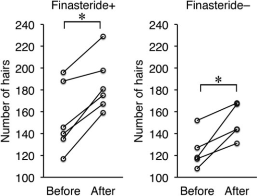 Changes in the number of hairs before and after treatment in male patients with or without finasteride administration. *P < .05.
