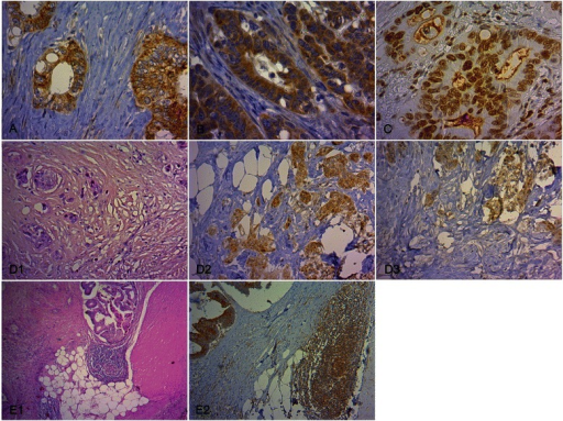 Immunohistochemical staining of pVEGFR-1 in tumor cells and VEGFR-1 in inflammatory cells of CC tissue. (A) Characteristic pVEGFR-1Tyr1048 expression in tumor cells with membranous and cytoplasmic immunostaining (x 400). (B) Characteristic pVEGFR-1Tyr1213 expression in tumor cells with membranous and cytoplasmic immunostaining (x 400). (C) Characteristic pVEGFR-1Tyr1333 expression in tumor cells with nuclear immunostaining (x 400). (D) pVEGFR-1 expression in tumor cells in tumor budding regions. Tumor budding was defined as single tumor cells and oligocellular tumor cell clusters along the invasive margin (D1, H.E., x 200). Expression of pVEGFR-1Tyr1048 (D2, x 200) and pVEGFR-1Tyr1213 (D3, x 200) in tumor budding regions. (E) Characteristic VEGFR-1 expression in inflammatory cells. Lymph follicles along the invasive front (E1, H.E., x 40) with VEGFR-1 immunopositivity (E2, x 100) in a non-metastatic CC case.