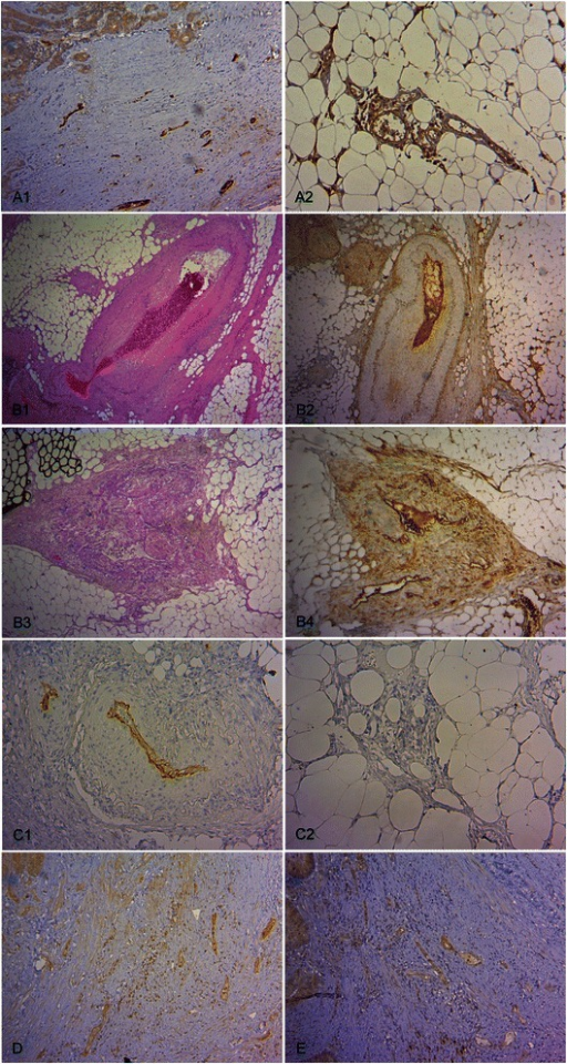 Immunohistochemical staining of the VEGFR-1 ligands and pVEGFR-1 in the vasculature of CC tissue. (A) Characteristic endothelial VEGF expression. VEGF positive intratumoral microvascular vessels with predominantly compressed lumina (A1, x 100) and extratumoral microvascular vessels with open lumina (A2, x 100). (B) Characteristic endothelial PlGF expression: Macrovascular vessels with arteriosclerotic changes (B1, H.E., x 40) and PlGF immunopositivity (B2, x 40) as well as altered macrovascular vessels with discontinuous, hypoplastic smooth muscle cell layer (B3, H.E., x 40) and PlGF immunopositivity (B4, x 40). (C) Characteristic endothelial VEGF-B expression: Small and large vessels with VEGF-B immunopositivity (C1, x 100) and capillaries with absent VEGF-B expression (C2, x100). (D) Characteristic endothelial pVEGFR-1Tyr1048 expression in small intratumoral vessels (x 100). (E) Characteristic endothelial pVEGFR-1Tyr1213 expression in small intratumoral vessels (x 100).