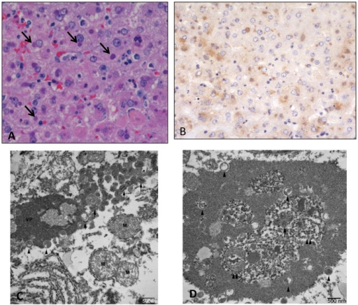 Histopathological, immunohistochemical, and electron microscopic findings in the liver.Animal #3 (2.4 x 107 PFU group). A) Hepatocellular degeneration and necrosis with prominent eosinophilic intracytoplasmic inclusions (arrows). HE. B) Immunohistochemistry demonstrates vaccinia viral antigen in the liver. Immunoperoxidase method with hematoxylin counterstain. C) Transmission electron micrograph of inclusion in hepatocyte. Note the varying stages of virion from immature (arrowheads) to mature (arrows). VP—viroplasm; M—mitochondira. D) Transmission electron micrograph of inclusion in hepatocyte containing endoplasmic reticulum (double arrowheads) and free ribosomes.