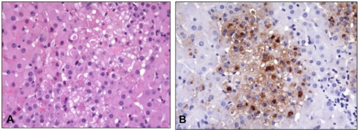 Histopathological and immunohistochemical findings in the adrenal gland.Animal #9 (7.8 x 104 PFU group). A) Multifocal degeneration and necrosis of adrenal cortical cells. HE. 40X. B) Replicate section of A. Antigen is present in affected cells. Immunoperoxidase method with hematoxylin counterstain. 40X.