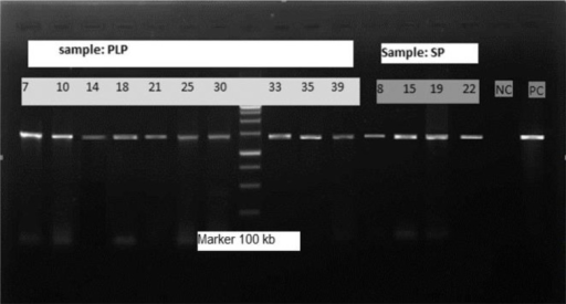 500 bp PCR product electrophoresis of positive Acanthamoeba(Marker: 100 bp, NC: Negative control, PC: Positive control, SP: Swimming pool, PLP: pond water)