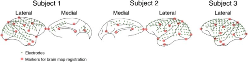 Electrode locations in 3 subjects.In Subject 1, electrodes (green dots) were placed to cover most of the lateral surface of the right hemisphere, also the medial parts of the frontal and occipital lobes. In Subject 2, a similar layout was used, but in the left hemisphere. In Subjects 3, all electrodes were placed on the lateral surface of the left hemisphere, and no medial parts were covered. For brain map registration, the electrode locations and the brain outlines from Subjects 1 and 3 were manually registered to those from Subject 2 based on 13 markers (red circles) in the lateral hemisphere and five markers in the medial hemisphere.DOI:http://dx.doi.org/10.7554/eLife.06121.004