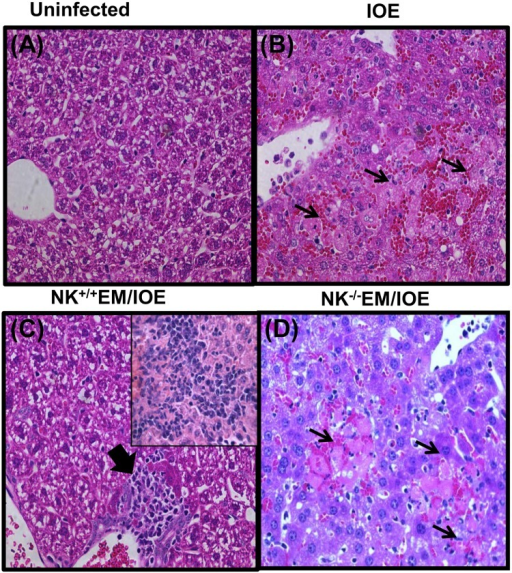 NK cells confer protection against IOE-mediated immunopathology during recall response.Compared with naïve mice (A), and IOE-infected/unprimed mice (B), the livers of NK+/+EM/IOE mice (C) have minimal apoptotic and necrotic cells but contain lymphohistiocytic cellular infiltration (arrowhead and inset) and minimal apoptosis. In contrast, the livers of NK-/-EM/IOE-infected mice (D) has a greater number of apoptotic cells and foci of liver necrosis (arrows), as detected by H&E staining after challenge with IOE. (Original magnification, X40). Data are representative of sections from one mouse in each group with similar results obtained in three independent experiments with three mice per group.