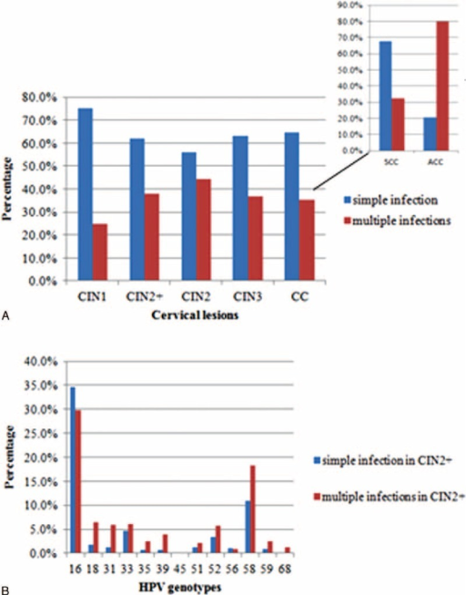 (A) Simple and multiple infections by high-risk human papillomavirus (hr-HPV) genotypes in cervical lesions; (B) simple and multiple infections by hr-HPV genotypes in CIN2+ (high-grade cervical lesions, including cervical intraepithelial neoplasia grade 2 [CIN2]), cervical intraepithelial neoplasia grade 3 (CIN3), cervical cancer (CC, including squamous cervical cancer [SCC] and adenocarcinoma of the cervix [ACC]) lesions. ACC = adenocarcinoma of the cervix, CC = cervical cancer, CIN2 = cervical intraepithelial neoplasia grade 2, CIN2+ = (high-grade cervical lesions, including CIN2, CIN3, SCC, and ACC) patients, CIN3 = cervical intraepithelial neoplasia grade 3, hr-HPV = high-risk human papillomavirus, SCC = squamous cervical cancer.