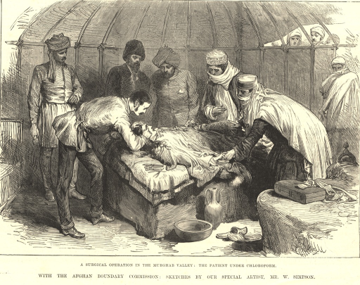 <p>Illustration of an a surgical procedure performed by the British surgeon, C.W. Owen.  A young woman had fallen into a fire and burnt her face.  Dr. Owen is shown operating on the eye of the unconscious woman, while a group of people in native dress watches.</p>