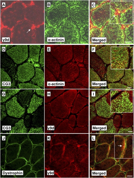 NS Tms recognized by the CG3 and γ9d antibodies have distinct myofiber localization. Shown are confocal images of transverse sections (7 μm) through soleus muscles stained with γ9d (A) or CG3 (D) and costained with α-actinin (B and E). The enlarged merged images (C and F, insets) indicate that the Tms recognized by γ9d and CG3 are not colocalized with α-actinin (labels myofibrils) and therefore are located outside the myofibrils. Further transverse sections (G–I) show that CG3 and γ9d stain separate regions within the myofiber (particularly notable in the enlarged inset, I). Cross sections costained with the membrane protein dystrophin (J) and γ9d (K) also show strong staining of γ9d at the myofiber periphery beneath the membrane (L, arrow in the enlarged inset). Bars, 20 μm.