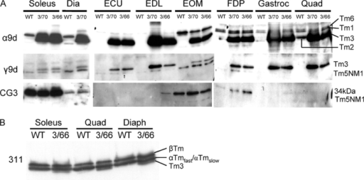 Expression of high levels of Tm3 in muscle has little effect on expression of sarcomeric and NS Tms. Western blots of 6-mo-old Tm3 skeletal muscle showing the influence of high levels of Tm3 expression on (A) NS or (B) sarcomeric Tm isoforms. Results for both wild-type (WT) and high-expressing transgenic lines (3/70 and 3/66) are shown. NS Tms containing exon 9d from the α- and β-TM genes are recognized by α9d. Products containing exon 1b and exon 9d from the γ-TM gene are recognized by CG3 and γ9d, respectively. A Tm3 band is detected by the γ9d antibody in Tm3 mice (3/70 and 3/66) due to cross-reactivity of the antibody with exon 9d products from the α-TM gene. The 311 antibody recognizes Tms containing exon 1a (Fig. 1), which includes Tm3 and the three sarcomeric Tms (αTmfast, αTmslow, and βTm). Under the electrophoretic conditions used the αTmfast and αTmslow isoforms are seen as a single band. See Fig. 2 legend for muscle abbreviations.