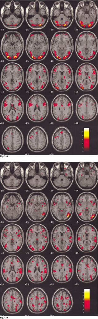 Comparison of the brain activation patterns between a healthy volunteer (42 years old) (A) and a depressed subject (40 years old) (B) in neutral condition. The colored functional maps were overlaid on the T1-weighted MR images. Note that the level of activation is significantly stronger in a healthy volunteer than in a depressed patient, especially in the visual and cerebellar cortices.